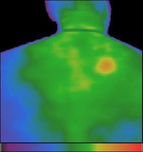 Фиг.12 – Плоскоклетъчен рак на кожата