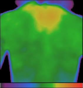 Фиг.17 – Хипертермия на гръбнъка при шийна остеохондроза