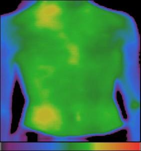 Фиг.3 – Изразена хипертермия в дясната област под диафрагмата (под лъжичката) при остър апендицит.