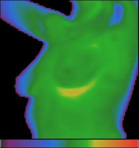 Фиг.9 – Термограма на млечните жлези на здрава жена.