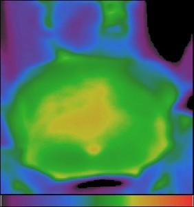 Фиг.5 – Хипотермия в проекцията на стомаха при гастродуодените с повишена секреция при 6 – месечно дете.