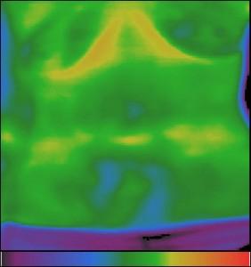 Фиг.13 – Доброкачествени тумори (липоми) на предната коремна стени (шкембе)