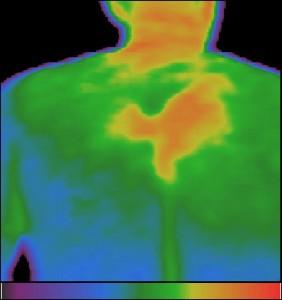 Злокачествено кожно образование на вътрешния край на дясната лопатка с разклонения към гръбначния стълб