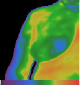 Фиг.11 – Студен възел (огнище) в проекцията на фиброзна мастопатия от дясно.
