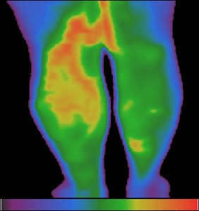 Фиг.1 – Варикозни вени на долните крайници. Хипертермия по хода на повърхностните вени на лявото бедро