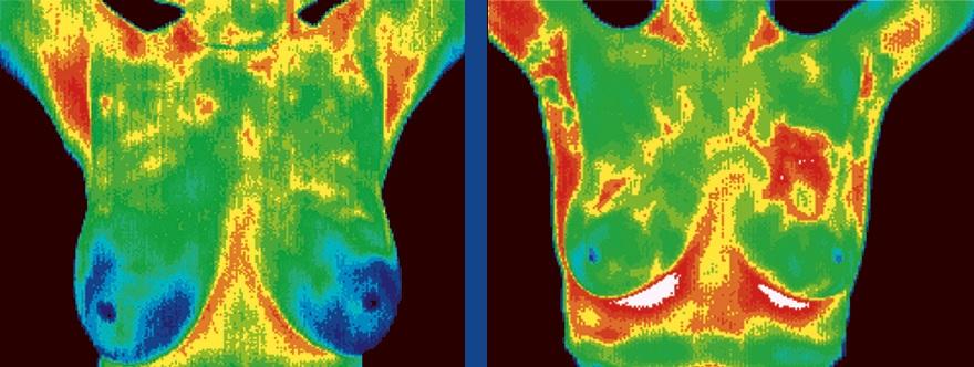 Изследване млечни жлези