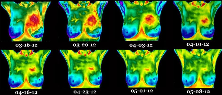 Прогрес на лечение на рак на гърда, проследен с термовизия