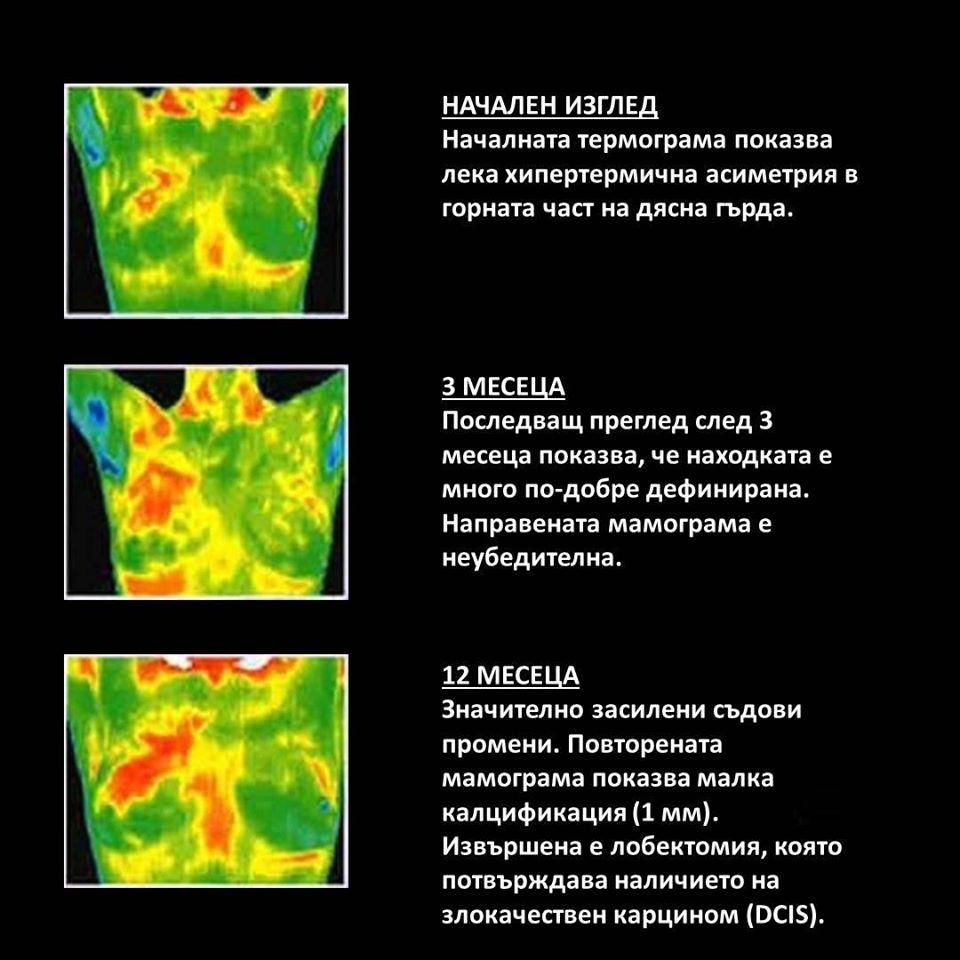 Ранна образна диагностика на рак на гърда