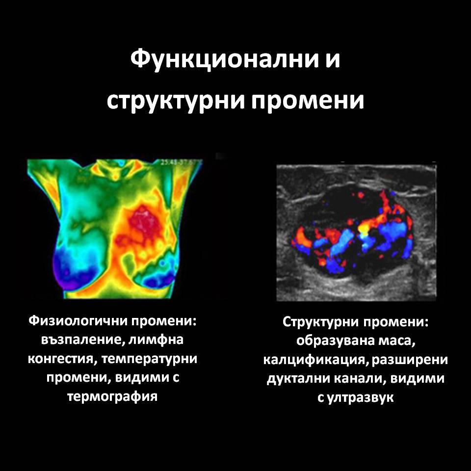 Термография – безвредна образна диагностика