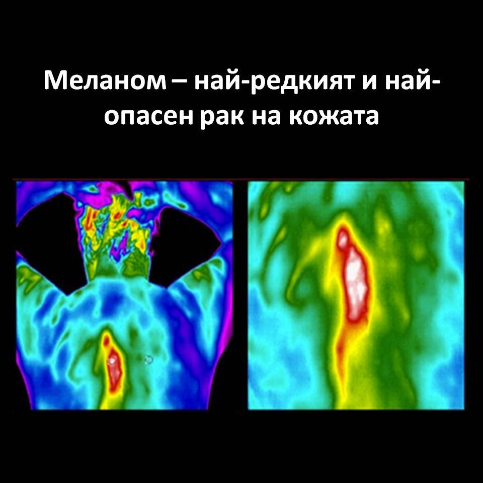 Диагностика на меланом - рак на кожата