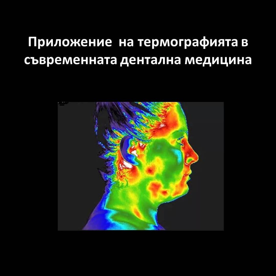 Приложение на термографията в съвременната дентална медицина