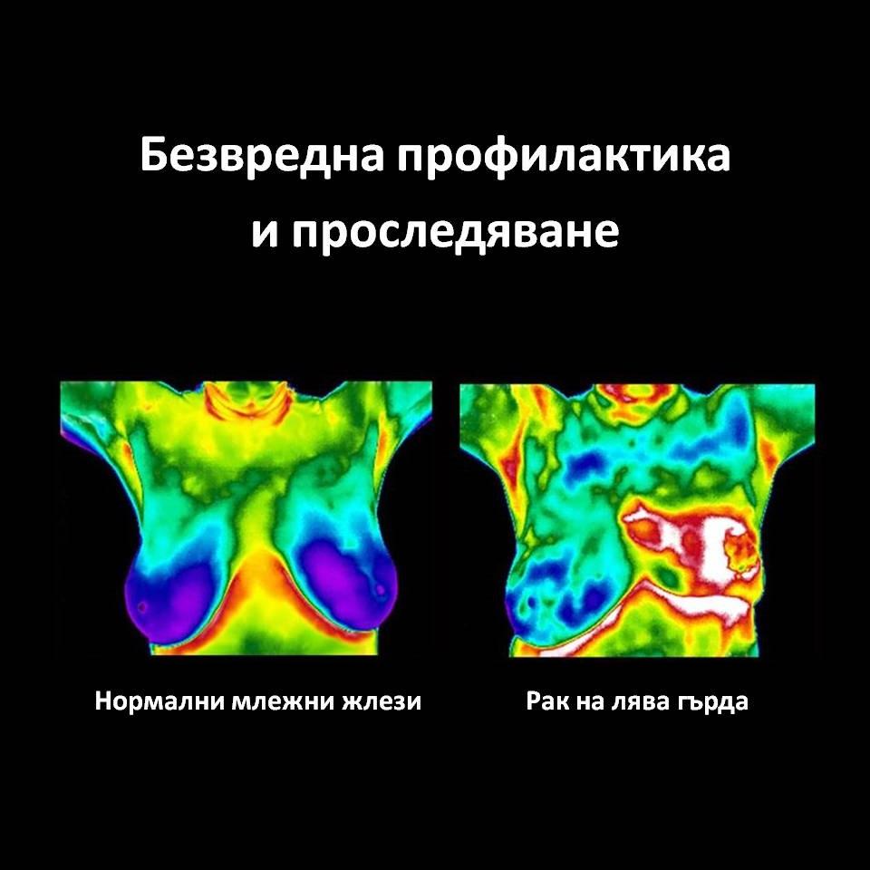 Мамография или термовизуална диагностика